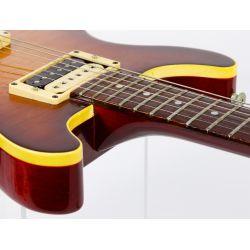 View 5: Hamer 1979 Sunburst Electric Guitar